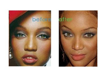 Penectomy Before And After http://plasticsurgerybeforeandafter.blogspot.com/2009/12/tyra-banks-nose-job.html