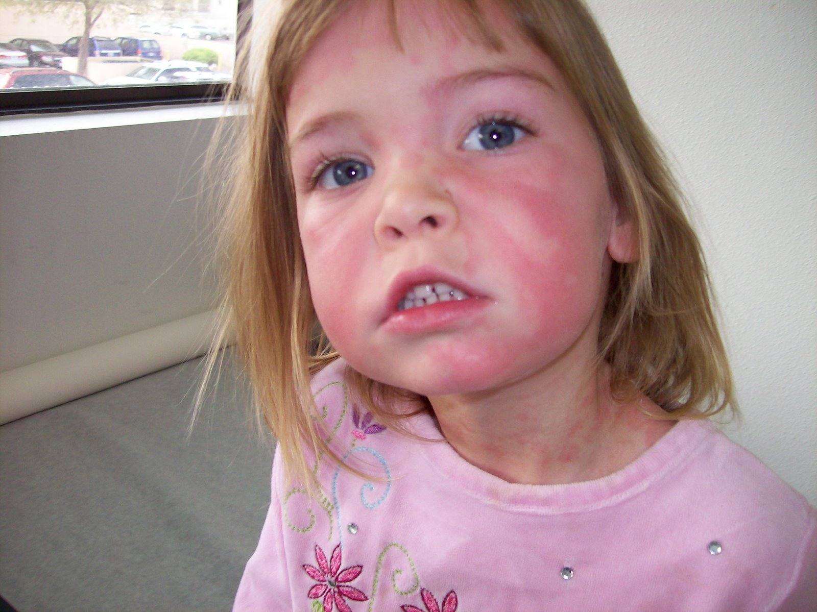 serum sickness Serum sickness is a medical condition which in many ways is similar to an allergy it is an immune response of the body to certain types of medicines or to an antiserum.