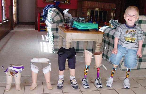 Cody Mccasland, Bocah Yang Tidak Pernah Menyerah Dengan Keterbatasannya [ www.BlogApaAja.com ]