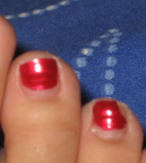 A Closer View Of The Left Toenail And Ridge No Warning That It Is Broken Or Anything