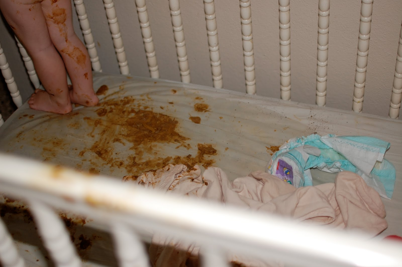 baby white poop