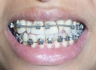 "My Teeth ""Before"" and ""After"" Braces 