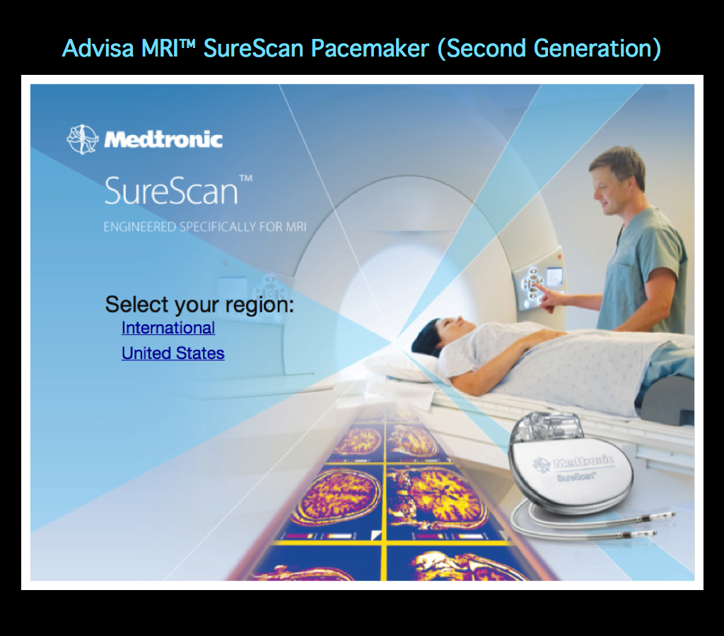mri and pacemakers Medtronic has announced us food and drug administration (fda) approval and the us launch of its advisa dr mri™ surescan® pacing system the ad.