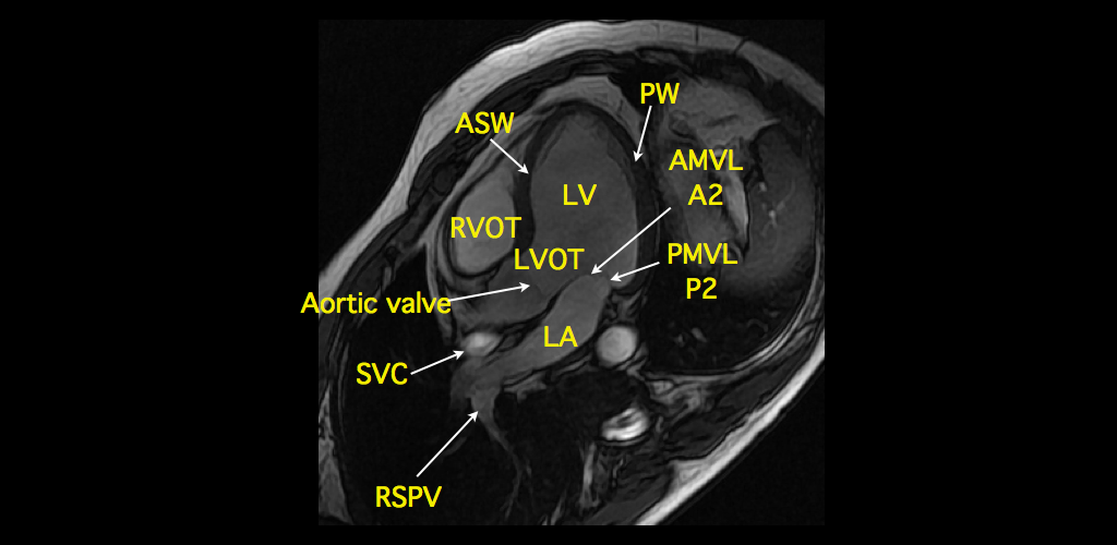 Cardiac mri anatomy