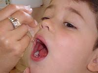 Imagem de uma criança recebendo a vacina via oral