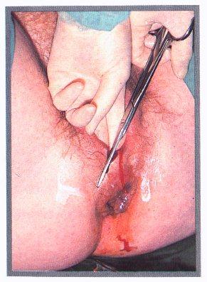 Quanto para a operação para aumentar um pênis