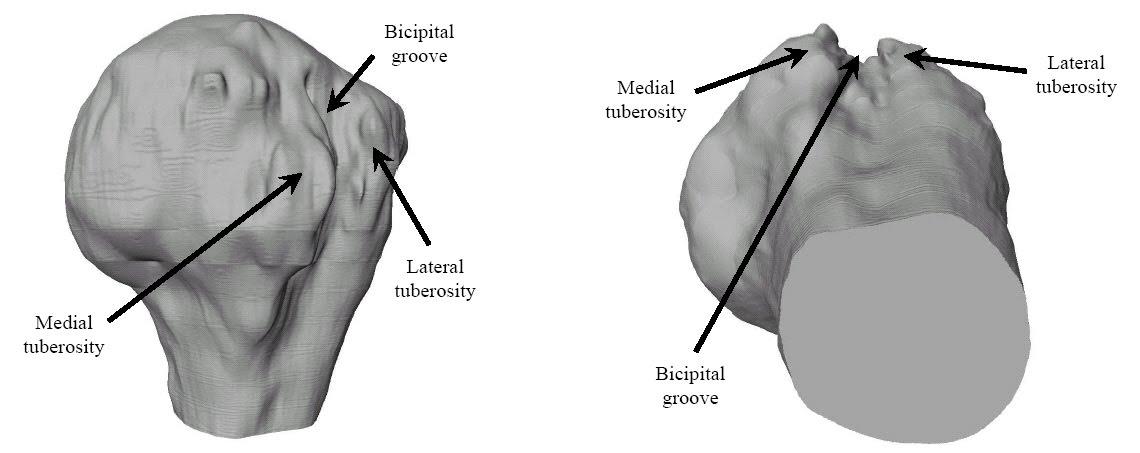 Bicipital Groove