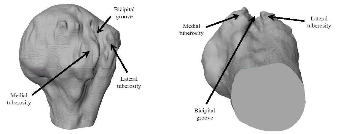 Doctors Gates: Bicipital Groove