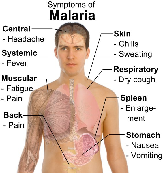 causes symptoms and treatment of yellow fever Vomiting bile – causes, symptoms, treatment bile is a digestive juice produced by the liver the liver is located just above the stomach in the upper abdomen.