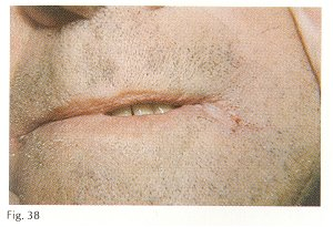 49 Treat Angular Cheilitis Quickly And Effectively