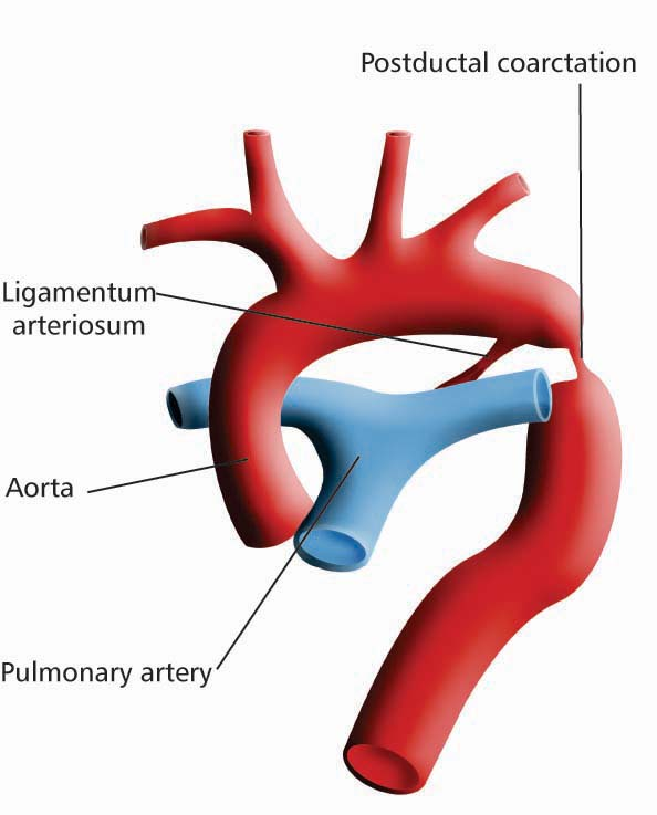Doctors Gates: Types of Coarctation of the aorta