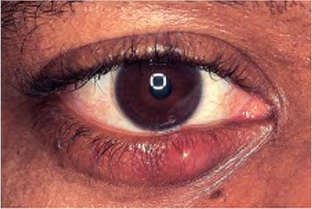 Chalazion and Hordeolum Stye  Eye Disorders  Merck