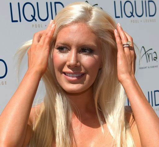 heidi montag after surgery 2010. hairstyles heidi montag after