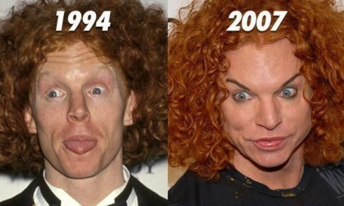 effects of plastic surgery When most people think of plastic surgery, they only think of the perfectly smoothed, flawless result.