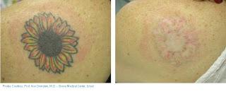 skära bort tatuering