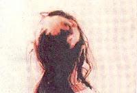 Keguguran Rambut pada seorang wanita.