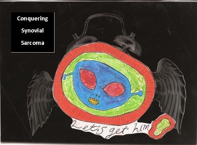 Conquering Synovial Sarcoma