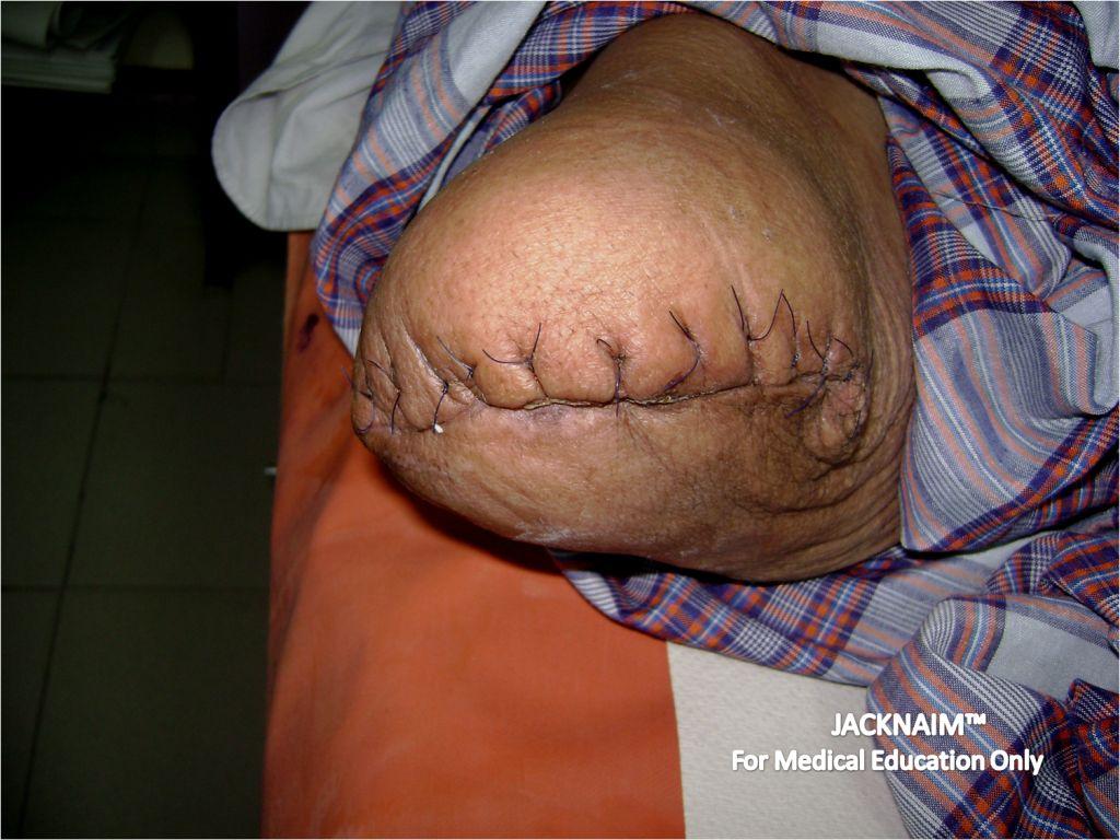 Below-Knee Amputation
