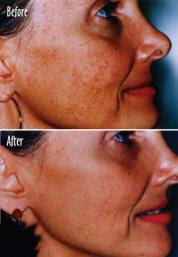 chemical peel before after