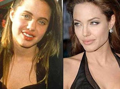 Angelina Jolie Chin augmentation