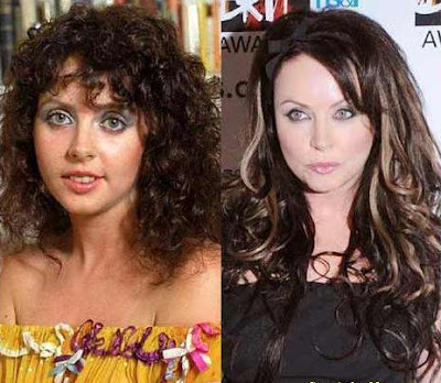 Sarah Brightman Liposuction Surgery