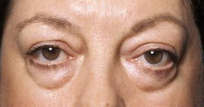 Bags Under Eyes (Dark Circles), Causes & Cures