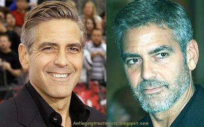 george clooney plastic surgery eye bag removal
