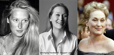 Meryl Streep Plastic Surgery facelift