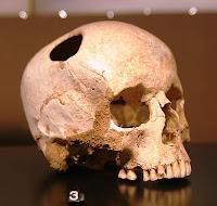 Επεμβάσεις εγκεφάλου στην Αρχαία Ελλάδα