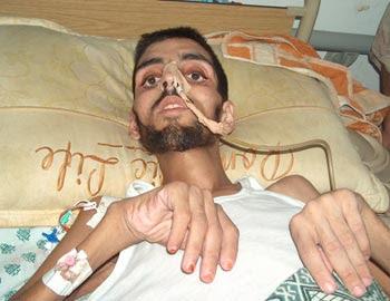 http://2.bp.blogspot.com/_ZxKAf8oOwtI/SShCodVCrrI/AAAAAAAARIQ/oU7-b9gYygA/s400/gaza_patient.jpg