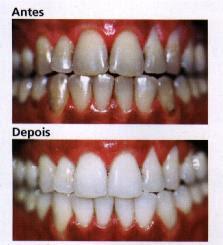 Clareamento Dental Caseiro E Laser Como Fazer E Precos