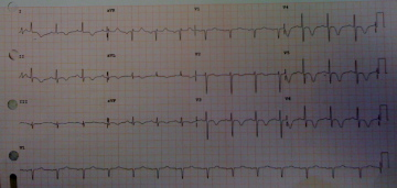 Cerebral=T-Waves-EKG-ECG-Intracranial-Hemorrhage-Bleeding-Stroke