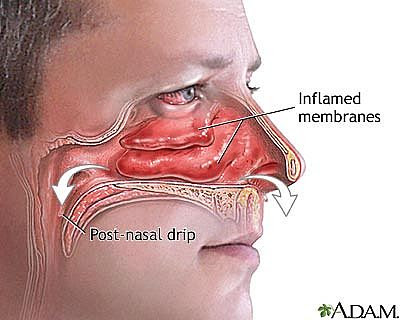 Gallery for gt sinus infection discharge