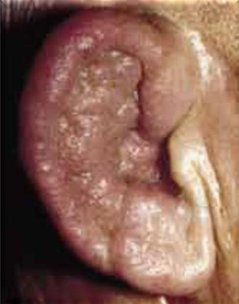 La medicina contra la psoriasis sobre la cabeza no hormónico
