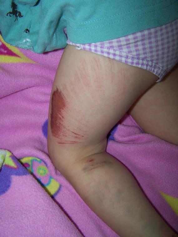 Bella's bike accident @ Wallowa Lake this year.  She actually broke her foot!!