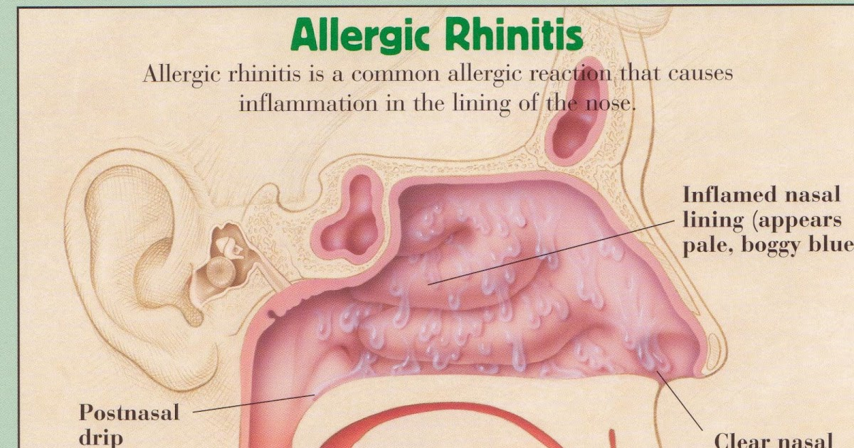 seasonal allergic rhinitis Nonallergic rhinitis is a medical term that describes a set of symptoms that resemble nasal allergies and hayfever but that occurs without a known cause it produces symptoms such as: it.