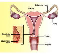 cara mengobati kanker serviks secara tradisional yang aman dan manjur, obat-obatan yang bisa digunakan untuk mengobati kanker serviks mulut rahim