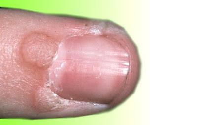 Penyebab kutil virus dan kebisaan hidup, kutil kelamin vagina dan cara mengobati kutil dengan obat alami
