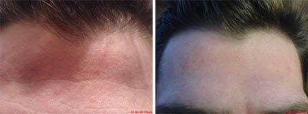 Derma scar removal