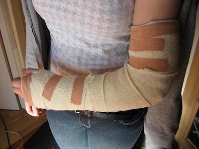 causes des douleurs aux bras mains