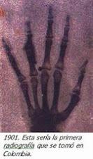 la primera radiografia