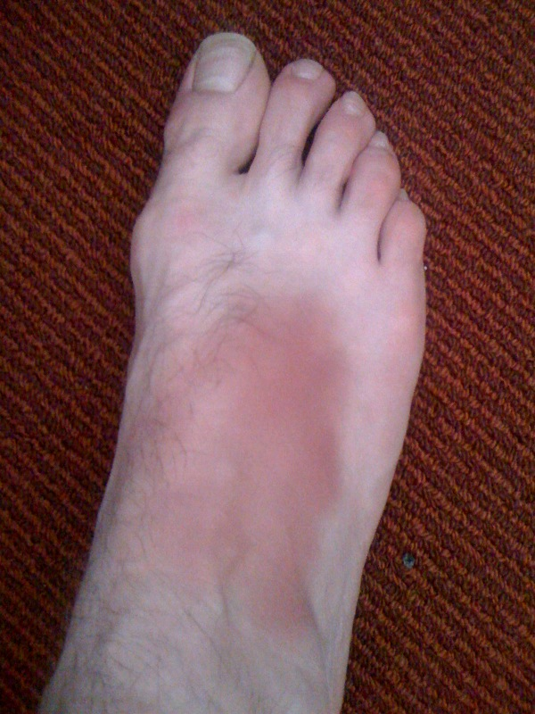 [sam+foot]