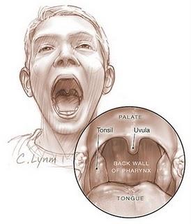 Tips mencegah radang tenggorokan karena Amandel.
