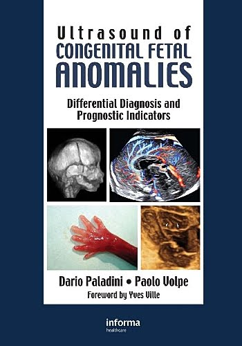 detecting fetal abnormalities through ultrasound essay However, since fetal ultrasound does not detect all fetal abnormalities, what is thought prenatally to be an isolated genital abnormality may turn out, postnatally, to be associated with other abnormalities.