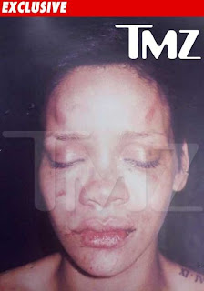Rihanna Pictures After Beating