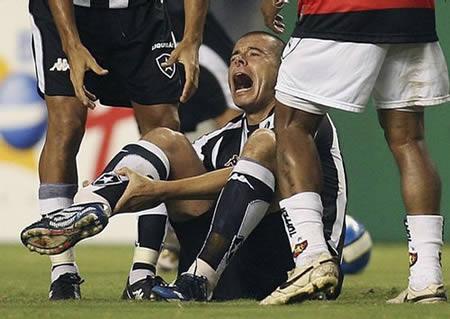 Kecelakaan Tekel (Sepakbola) Paling Mengerikan