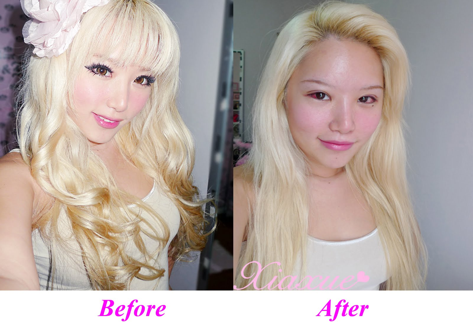 See Xiaxue before and after she did her double eyelids surgery Bad Double Eyelid Surgery