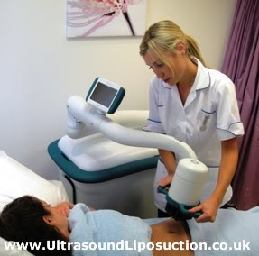 Liposonix - Ultrasound liposuction or ultrasound lipolysis at Absolute Aesthetics - the UK research centre for Liposonix - a division of The Whiteley Clinic