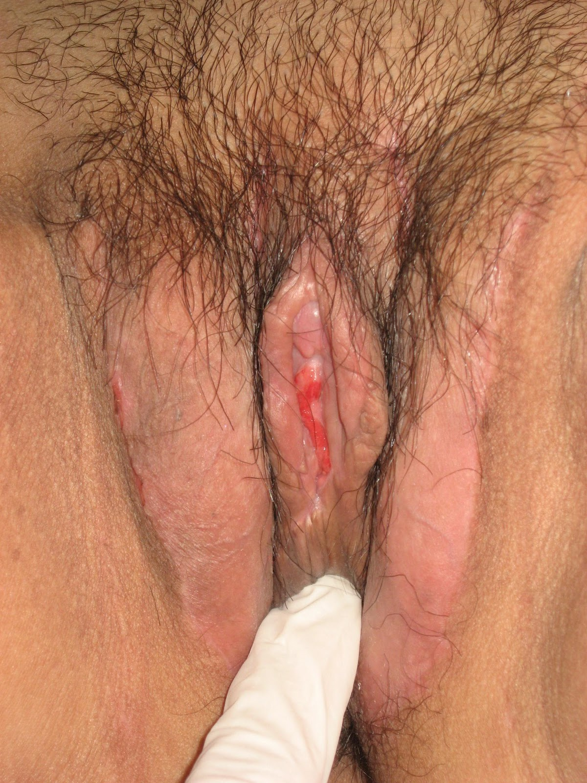 рот трансу транссексуалы изменение пола фото вагина трансы большими