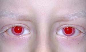 Tratamento de um fungo de pele respostas de iodo permanentes